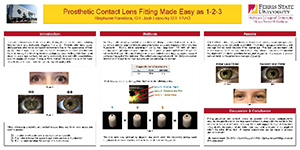 Prosthetic Soft Contact Lens Fit