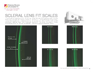 Scleral Lens Fit Scales - Link to PDF of scales